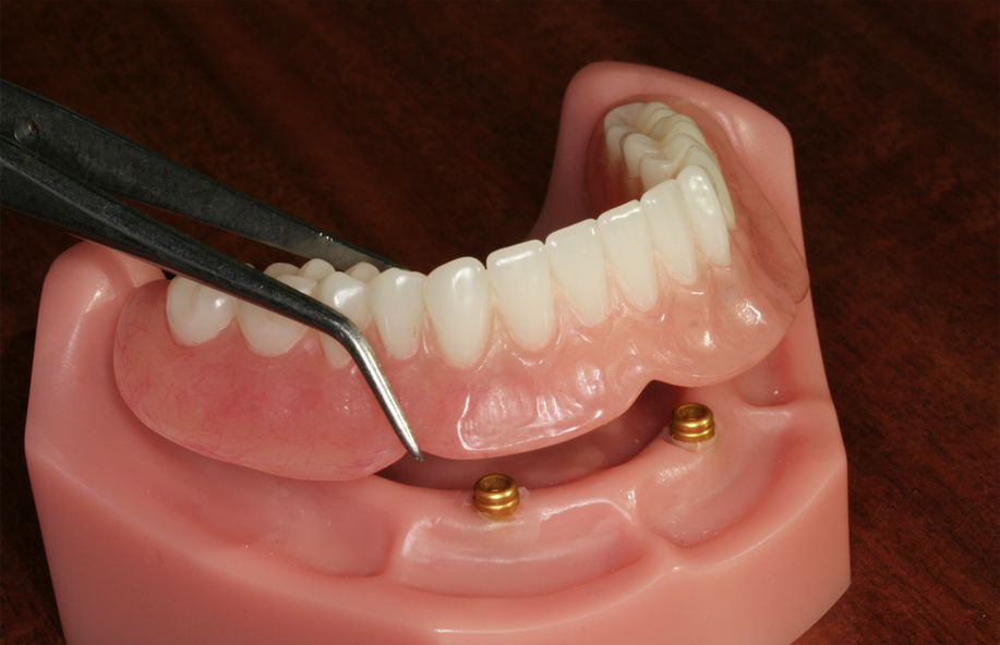 Model of a complete denture supported by implants