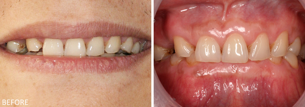 Full Mouth Reconstruction Case #1: Pre-treatment photos. The patient lost a significant amount of vertical height.