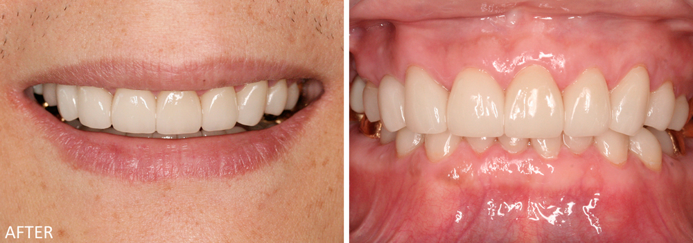 Full Mouth Reconstruction Case #1: Post-treatment photos.