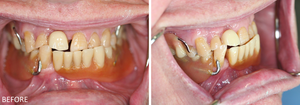 Partial Dentures Case: Before treatment