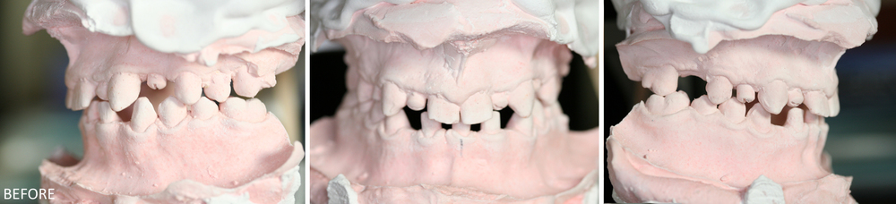 Full Mouth Reconstruction Case #2: Pre-treatment stone models