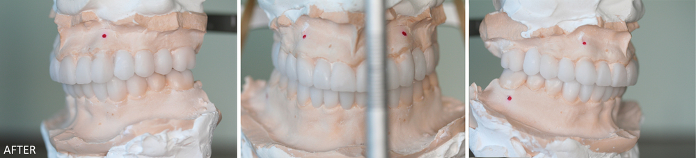 Full Mouth Reconstruction Case #2: stone models with crowns prior to final cementation