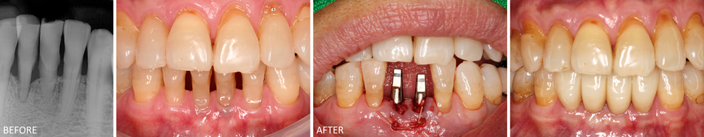 Immediate Implants Case: Two lower anterior teeth were extracted from advanced gum disease; immediate implants were placed in a single visit, with temporary crowns (not pictured). Picture on the right shows final restorations.