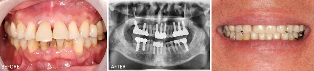 Multiple Implants Case: Patient's initial presentation (first image). After many days of pre-operative planning and workup, all implants were placed the same day.  The second picture shows the final post-operative x-ray with crowns and bridges restored on implants. The third photo depicts the patient's smile with temporary crowns after the implants have been placed.