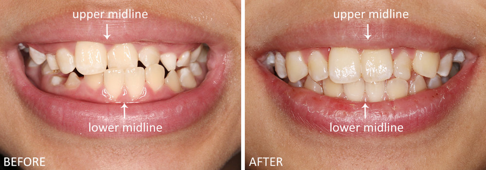Pediatric Case #1: Before, an eleven year old patient had an anterior crossbite - her lower front two teeth are protruding in front of two of her upper front teeth. After just one month into treatment with an interceptive orthodontic appliance, the patient's anterior crossbite was no longer present. One year later with appliance modifications, the upper and lower midlines difference has improved dramatically as seen in the second photo. The patient is still undergoing treatment to ensure all her permanent teeth continue to align well.