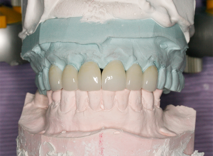 Veneers mounted on an articulator