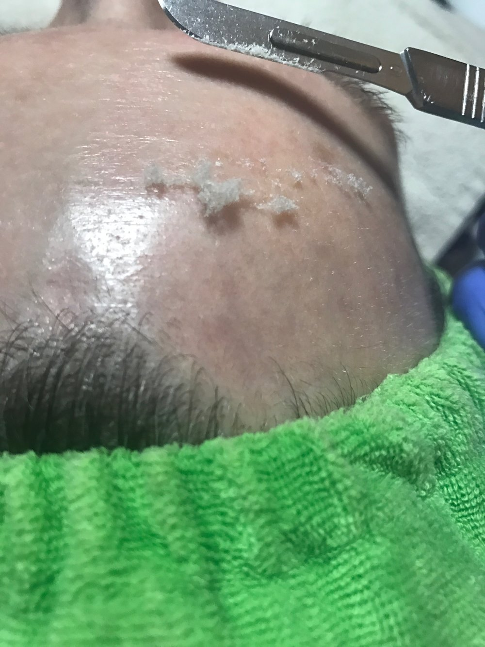 "If you're like, ""wtf is this?!"" and perhaps slightly frightened of that blade - DON'T BE! Focus rather on all that dead skin! Dermaplaning does not hurt, but it does give you a fantastic exfoliation!"