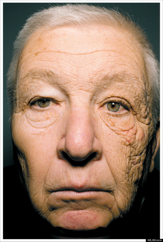 This photo demonstrates intrinsic vs extrinsic aging.  In 2012 the New England Journal of Medicine published this photo. This 65 year old man had been a delivery truck driver for 28 years. You can see the advanced aging on the left side of his face from UV exposure versus the right side of his face, which was better protected.