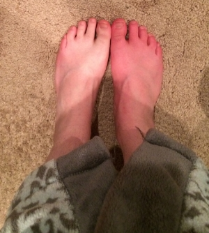 My hot and cold feet about three months after the procedure.