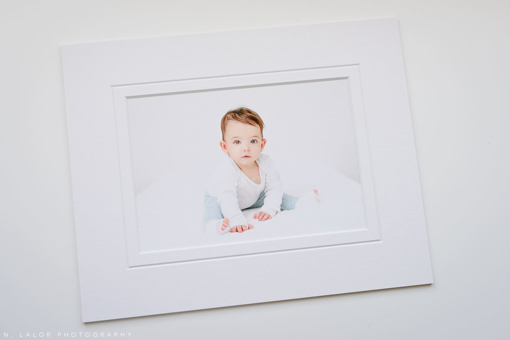 1-year old baby girl with EB (Epidermolysis Bullosa). Fine art print by N. Lalor Photography. Greenwich, CT.
