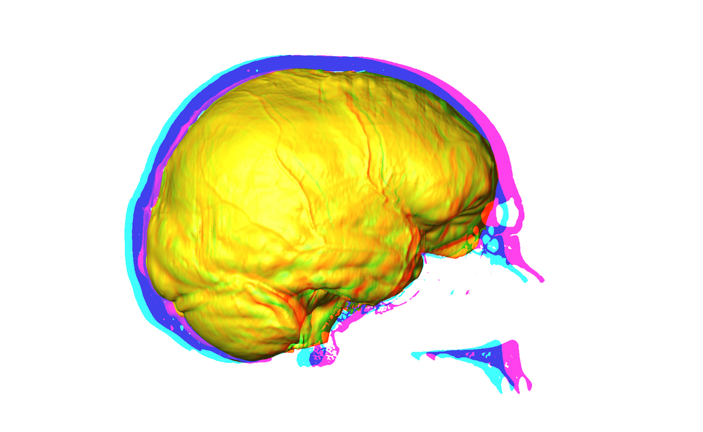 3D rendering of human endocast and associated midsagittal cranial tomorgraph