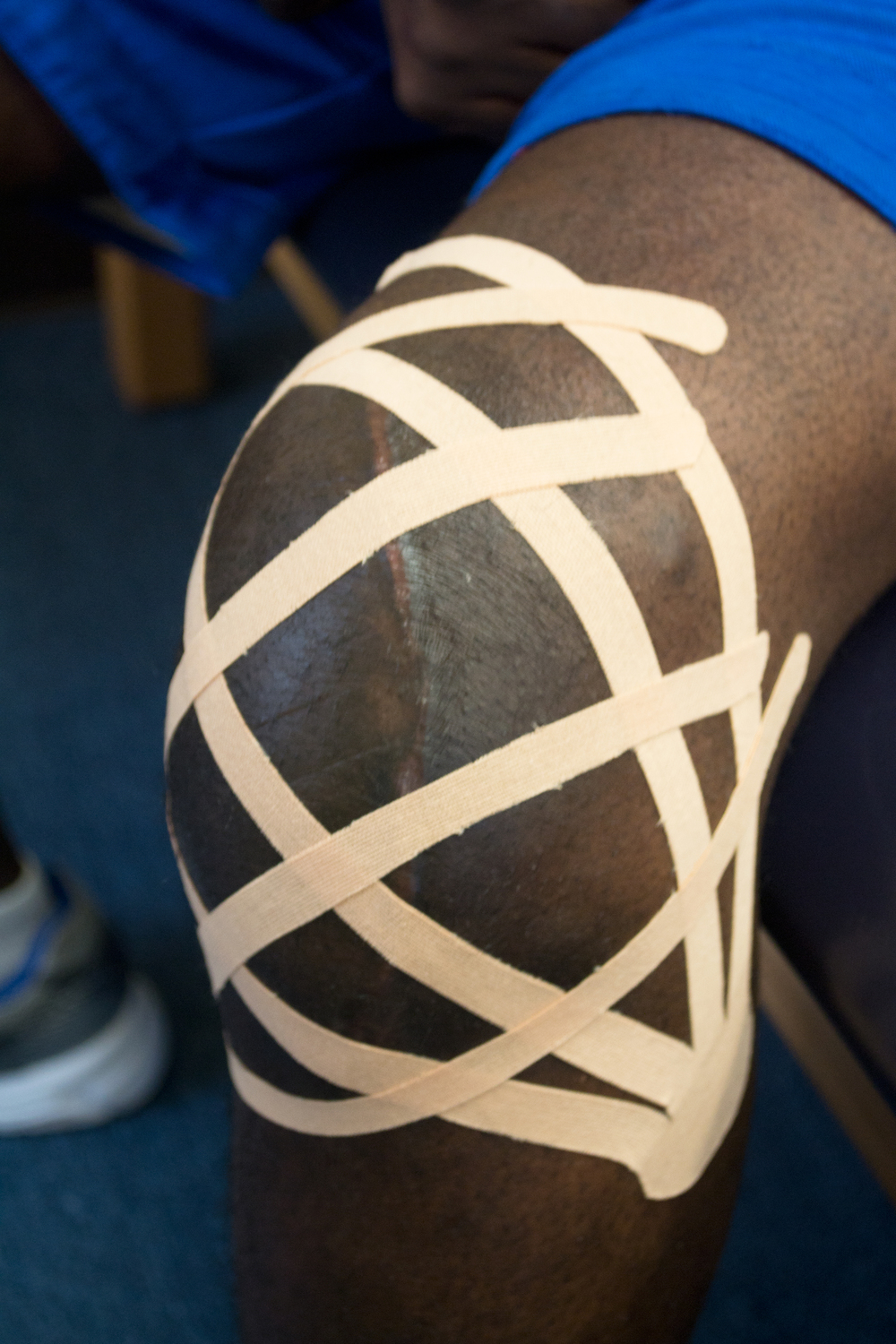 KINESIO TAPING TO HELP WITH SWELLING