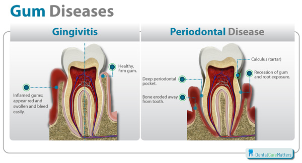 Image result for Gingivitis and Periodontitis