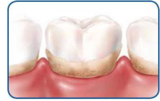 Teeth plagued with plague.