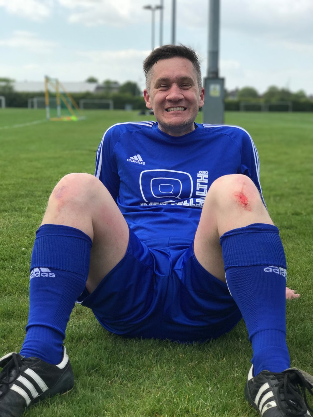 James proudly displays his war wounds. Rumour that it's actually tomato ketchup he spilt on his leg while eating a cheeseburger are unfounded.