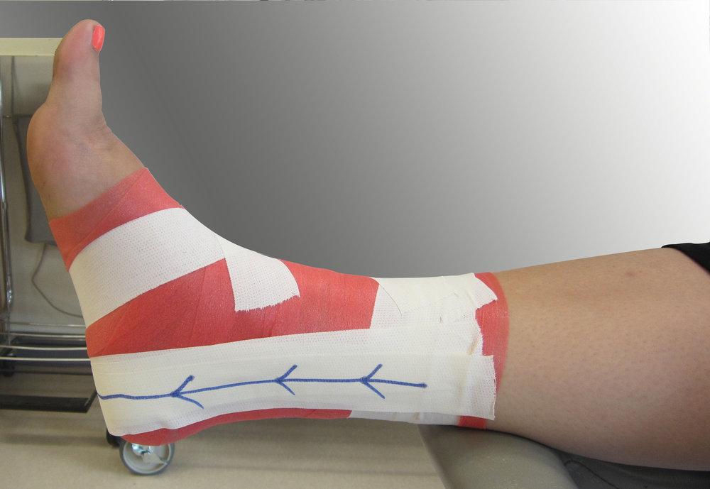 sports tape melbourne optimus physio richmond