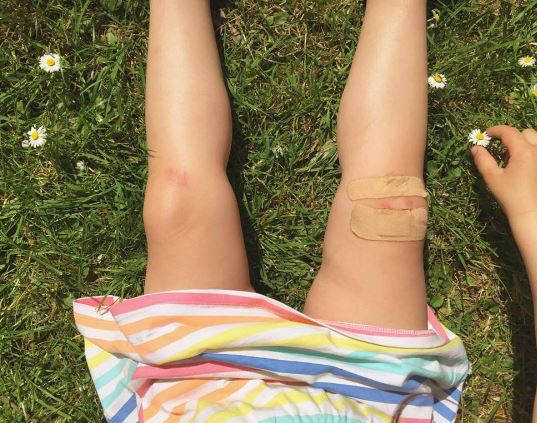 GRAZED KNEES: THE SIGN OF A GOOD WEEKEND