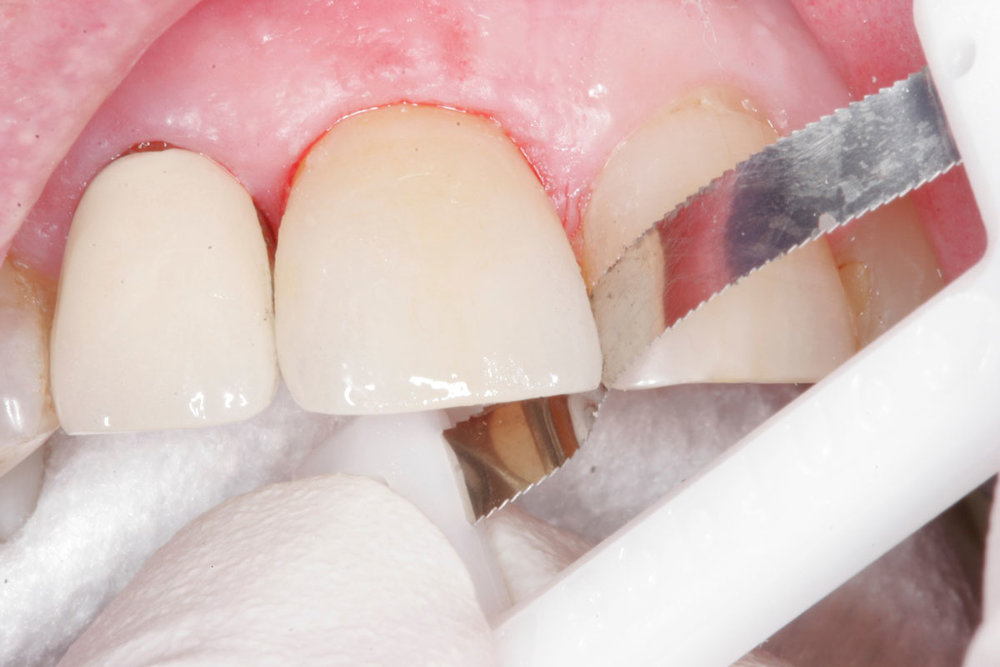 ...to cut and clean out the remaining resin cement in the distal and mesial interproximal spaces.