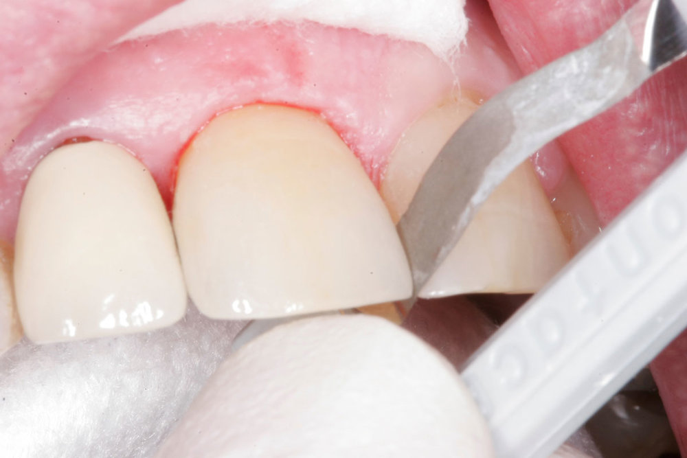 Fig. 6) Using ContacEZ Final Polishing Strip, the final proximal surface polisher (Gray), the mesial and distal proximal surfaces were polished.
