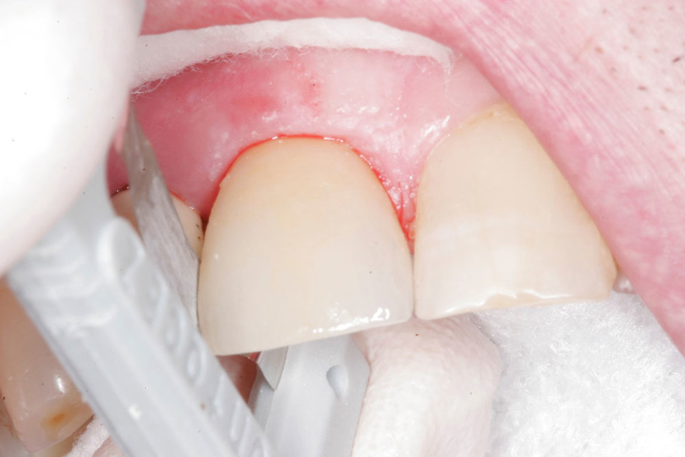 Fig. 7) The ideal proximal contacts are confirmed using dental floss. The dental floss was passed through the interproximal contacts with heavy resistance - snapping in and out. The crown seating of Tooth #8 was completed.