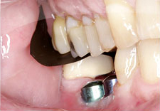 Fig. 5) The cement was removed from Tooth #31 and occlusion was evaluated with articulating film.