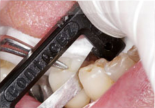 Fig. 9) Crown #30 was removed from the abutment and Crown #29 was placed on the abutment supported by the implant. ContacEZ Diamond Dental Strip was inserted into the mesial interproximal space of Tooth #29 with the abrasive surface facing the crown. The ContacEZ Diamond Dental Strip was passed approximately 18 times until it passed with light resistance. (Interproximal Relief was achieved)
