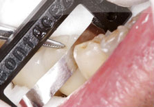 Fig. 11) ContacEZ Diamond Dental Strip was inserted into the mesial interproximal space of Tooth #29 confirming interproximal relief.