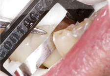 Fig. 12) ContacEZ Diamond Dental Strip was inserted into the mesial interproximal space of Tooth #30 confirming interproximal relief.