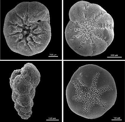 Foraminifera! Photo from Wikimedia Commons