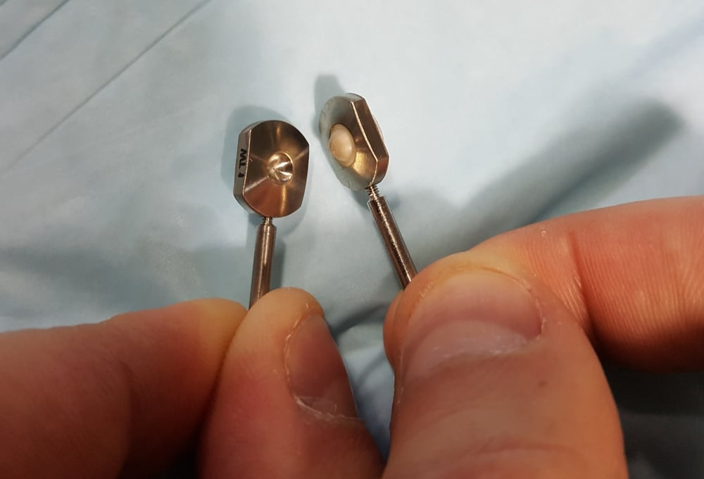 Here you can see the two parts of the Adamo Spinal Disc and the 'ball and socket' articulation between the two.  You can also see the screw threads that allow us to remove the positioning pins once the implant is in place.