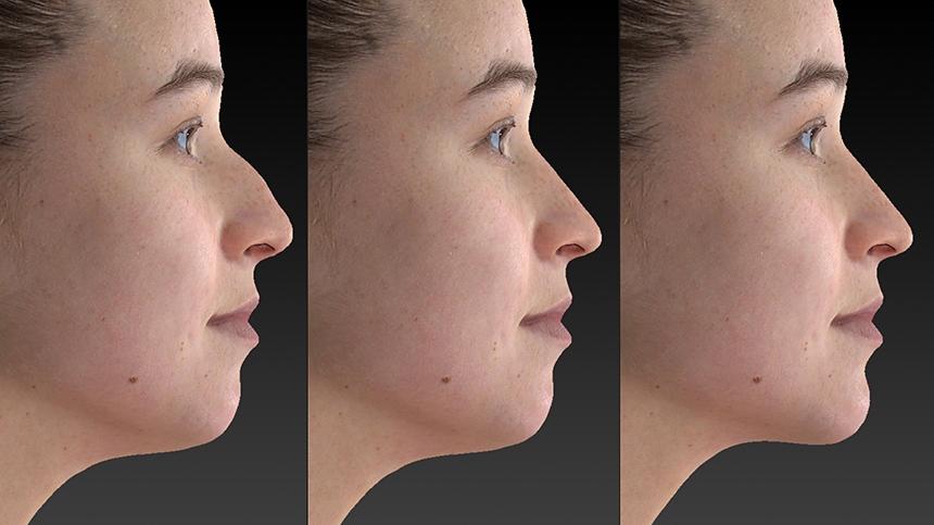 rhinoplasty and chin augmentation comparison.jpg