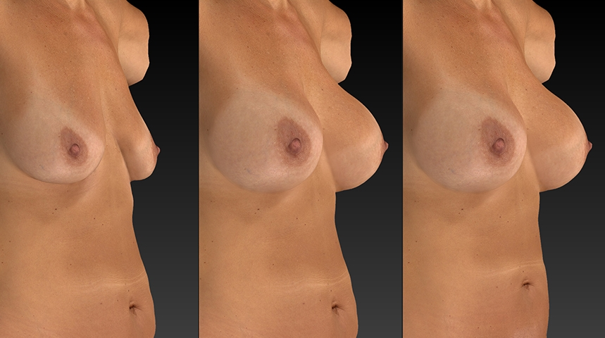 breast augmentation side by side comparison.jpg