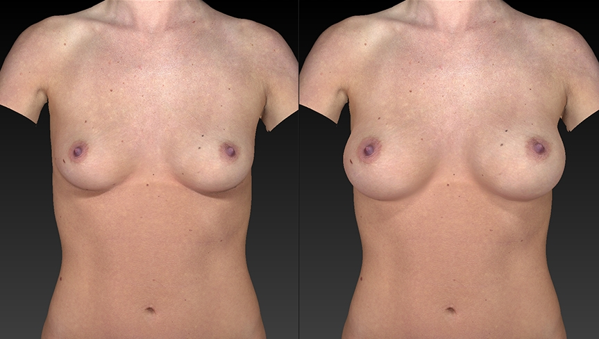 front view of breast augmentation comparison.jpg