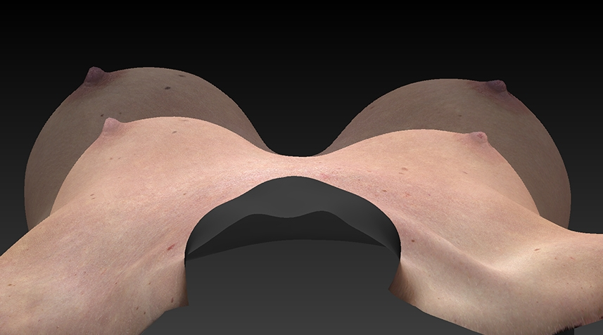 superimposed breast augmentation image.jpg