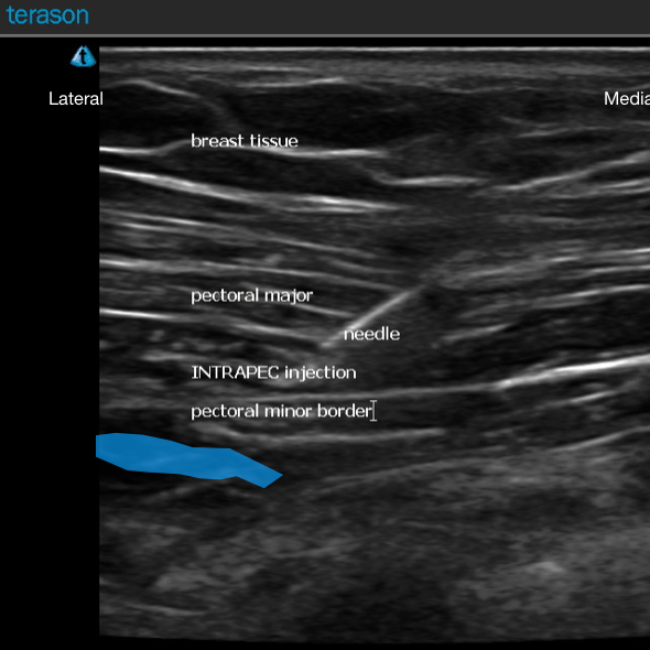 INTRAPEC ultrasound.png