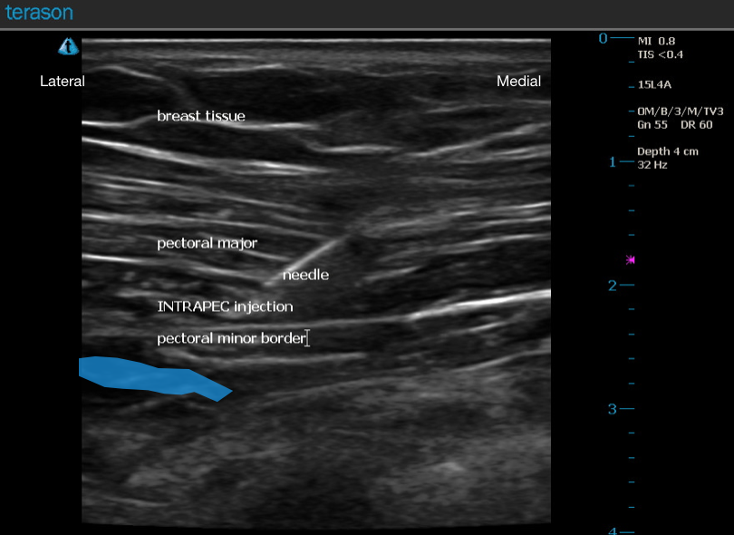 Ultrasound Guided INTRAPEC Injection.png