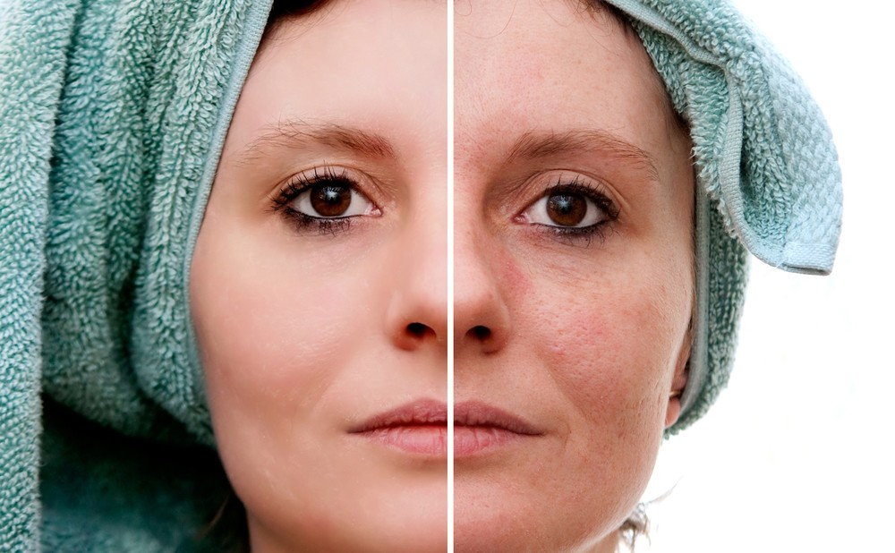 Melasma-During-Pregnancy.jpg