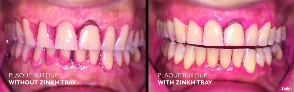 Zinkh-patient-A.png