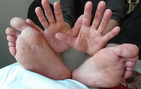 enfermedad boca manos pies.jpg