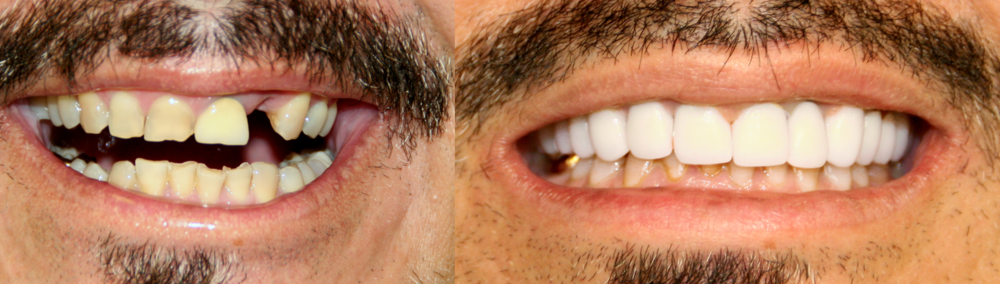 Dr. Ingram restored this patient's full top set after years of wear and tear.