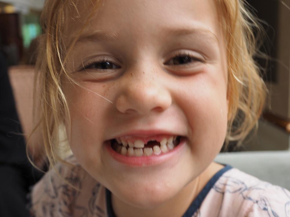 Bonus! Tooth fairy hotel visit.