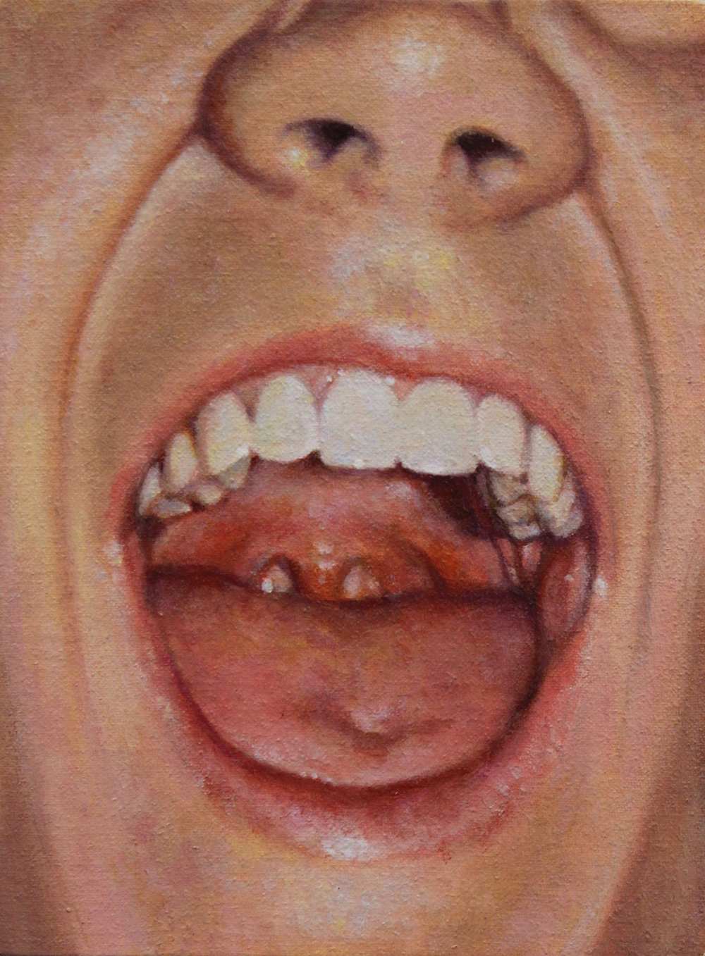 Erin's Throat