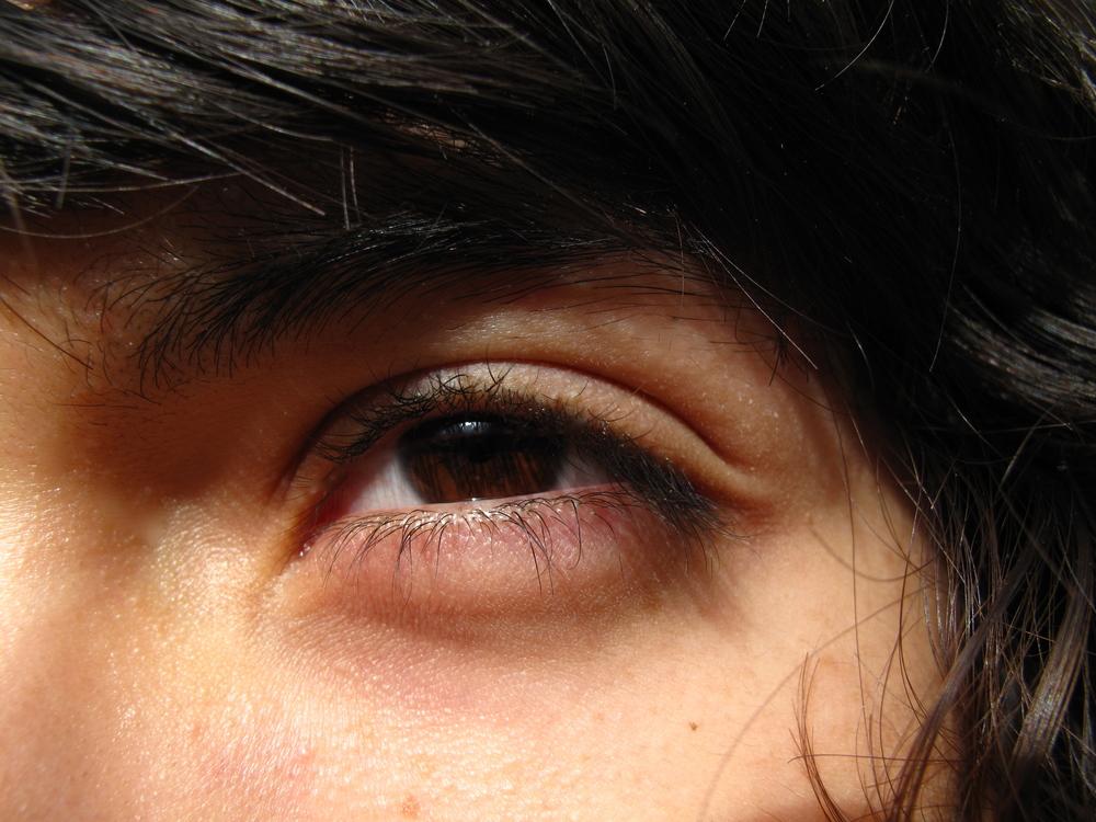 Oliver's eye close up.