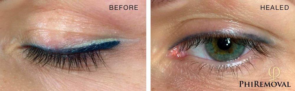 eyeliner_cosmetictatoo_removal.jpg