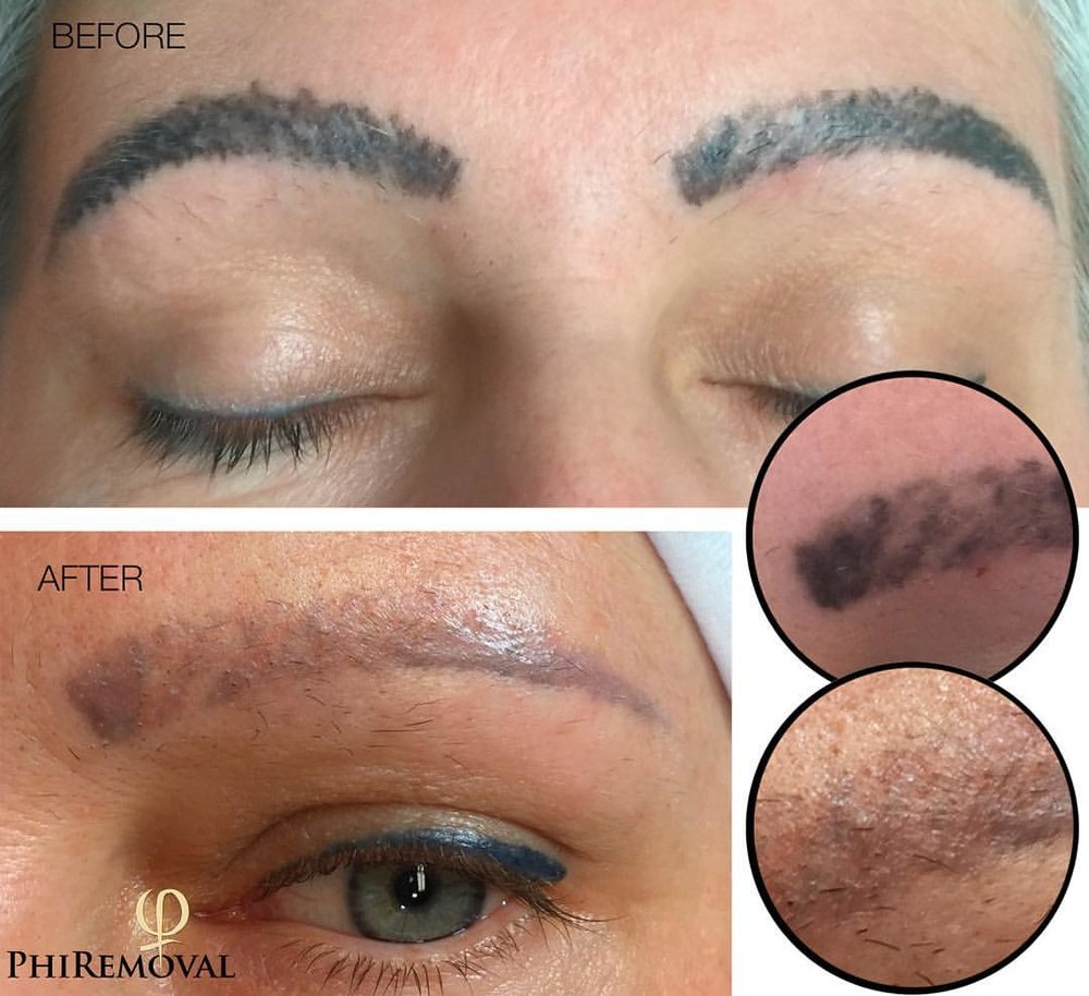 tatooremoval_houston_bigboldbrows.jpg