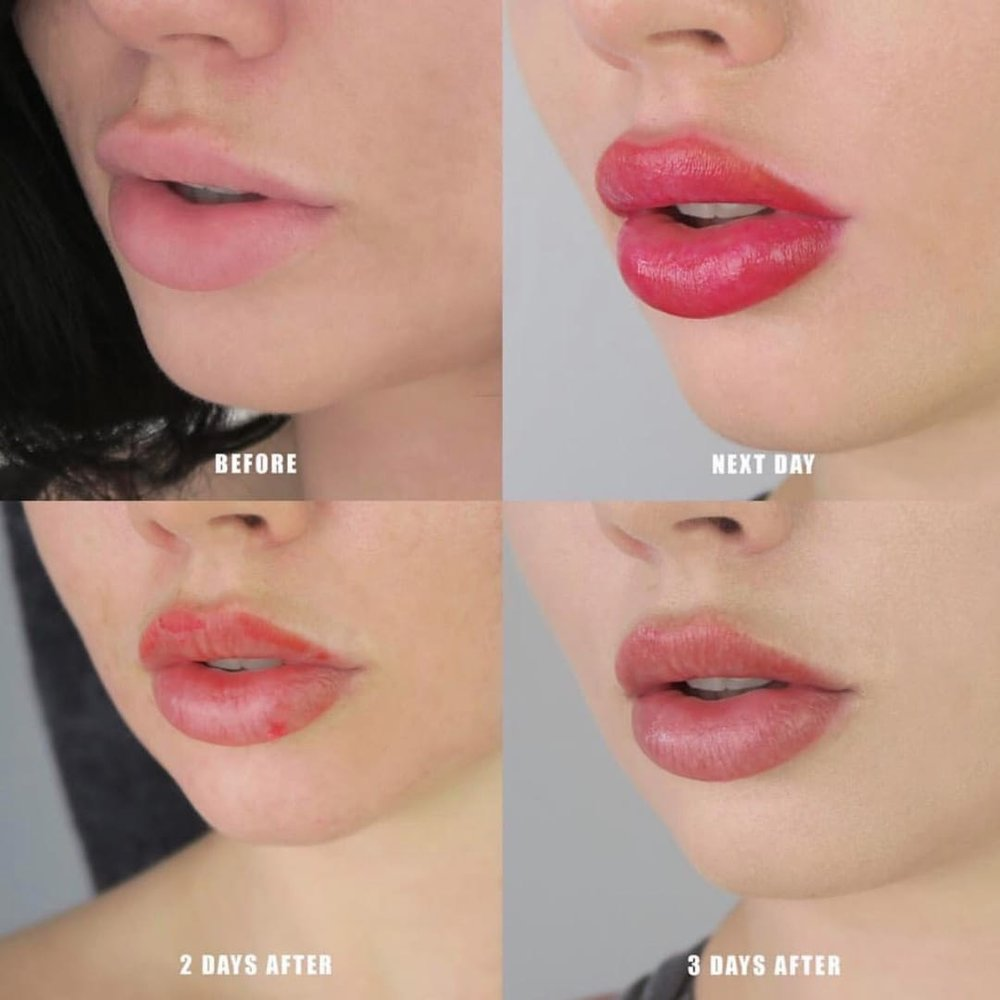 Lip Blushing - the latest cosmetic tattoo technique to create a softer-looking lip tattoo enhances lips by giving them a more defined shape and youthful tint. Colors are chosen for the client's desired results and skin tones.