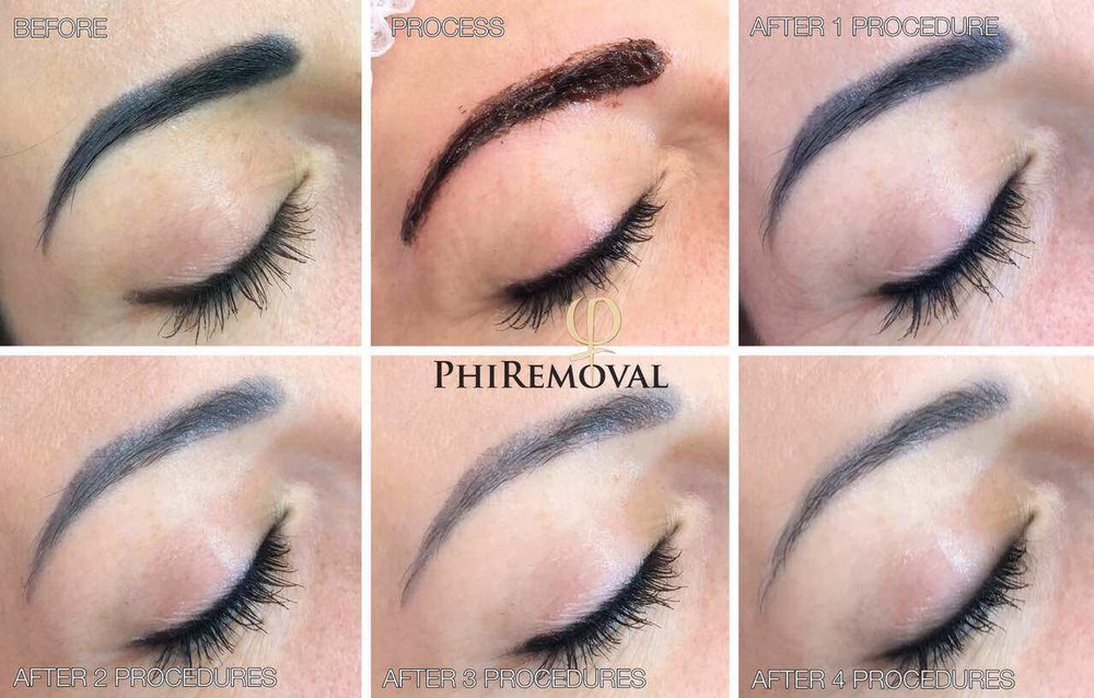 PhiRemoval-brows.jpg