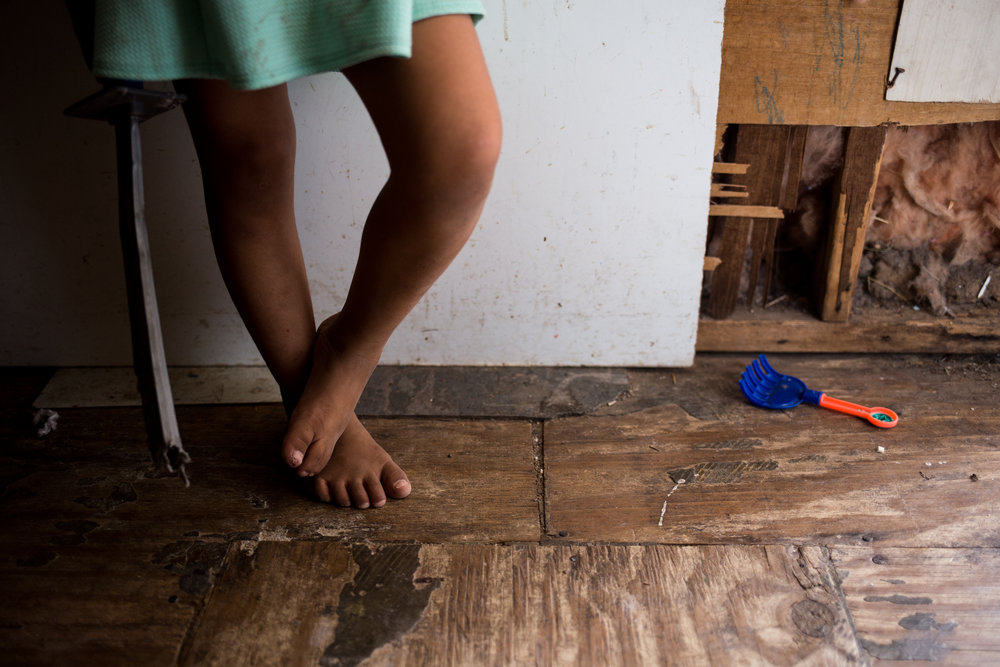 Teresa de la Zoya's grandchild, Ashlee, has scars and open wounds on her feet from frequently playing outdoors without shoes on. Teresa and her six grandchildren live with her in a dilapidated mobile home in a South Texas  colonia  — a type of informal settlement that floods often and lacks a combination of electricity, paved roads, water and sewage systems.