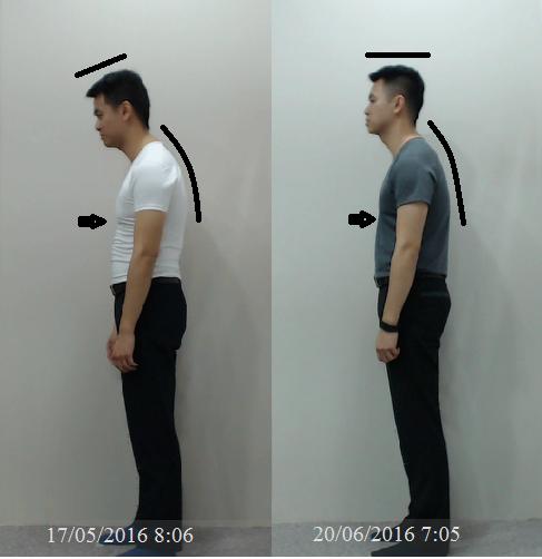Posture correction The Kairo Practice Singapore Chiropractic