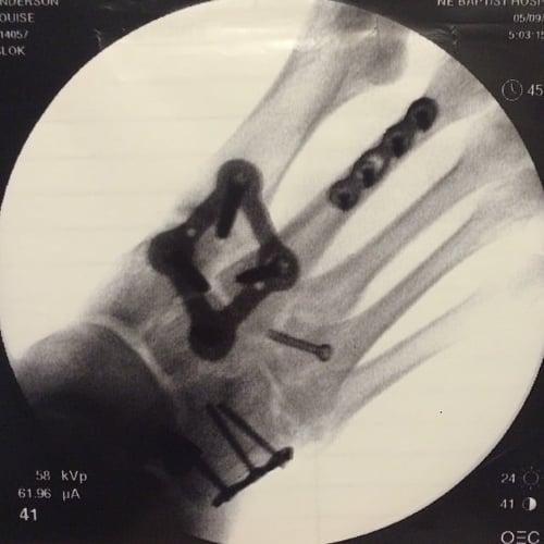 broken-foot-snap-money-expensive-car-accident